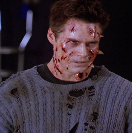 Jeremy Burns (Eric Woods in Charmed) disfigured by thorns