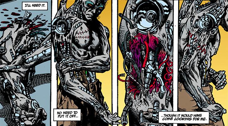 The Machine (Avram Roman) reattaches his arm