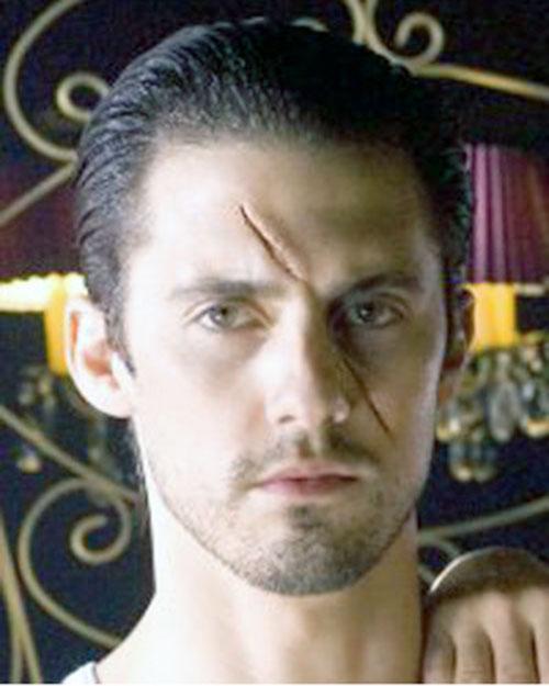Peter Petrelli (Milo Ventimiglia in Heroes) with a big facial scar