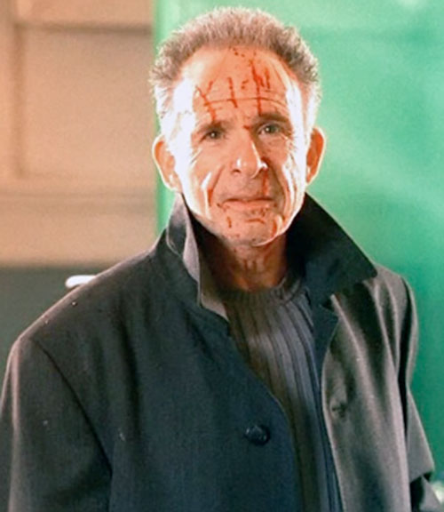 Arvin Sloane (Ron Rifkin in Alias) with a bloodied face