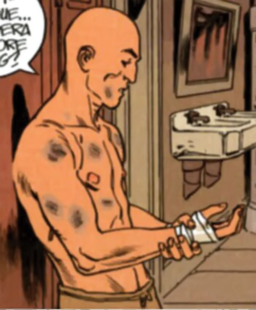 La Mangouste (Mongoose) (XIII graphic novels) as a young man with a battered body